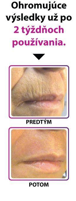 Krém proti vráskam 4D HYALURON - Starostlivosť o pokožku..