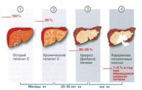 Гепатит с последствия