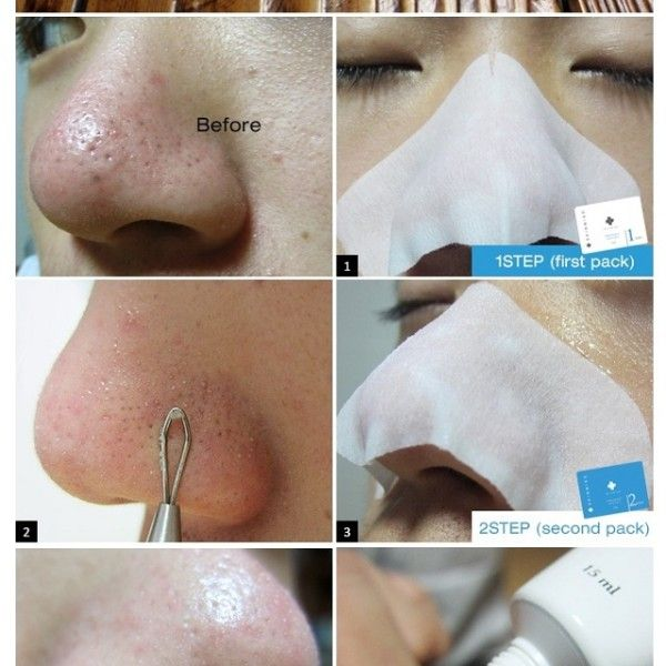 how to clean blackheads naturally