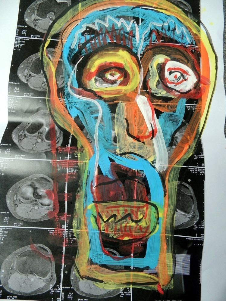 Anotomie- übermalte Röntgenbilder Schädel Art Brut Pop Art direkt ...