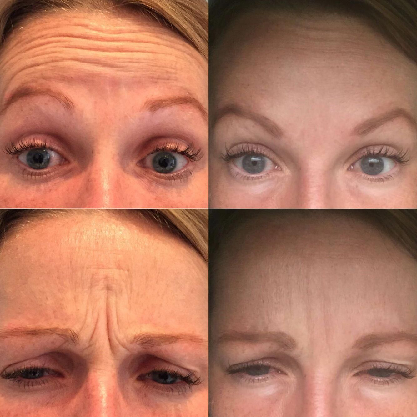 Azzalure before and after anti-wrinkle injection treatments  That
