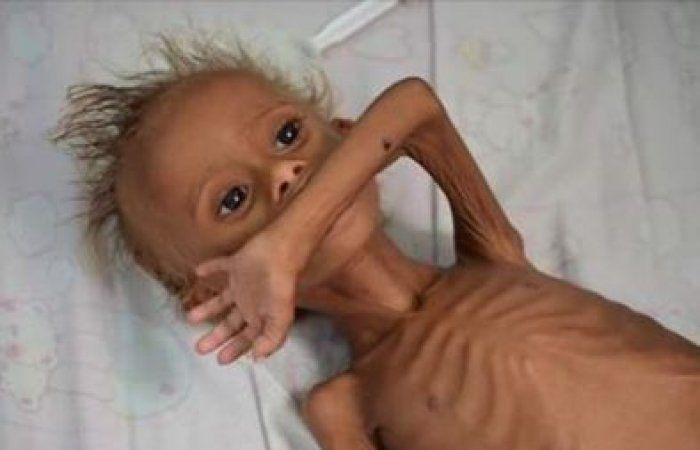 اخر اخبار اليمن - يونيسف: 10 ملايين طفل يمني بحاجة ماسة للمساعدات الإنسانية العاجلة