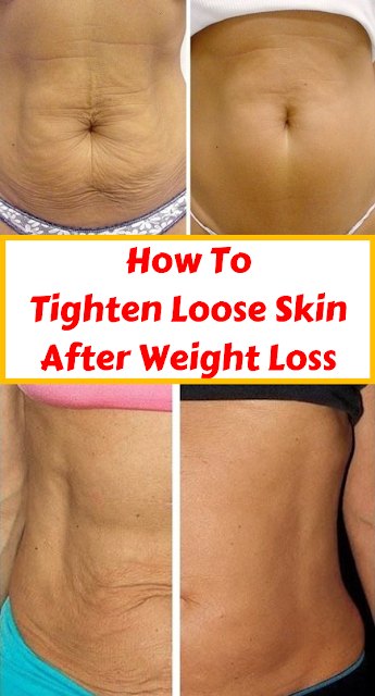 How to Tighten Loose Skin After Weight Loss | Health | Tighten loose
