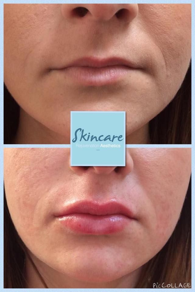 Nice natural lip enhancement carried out today after using 1