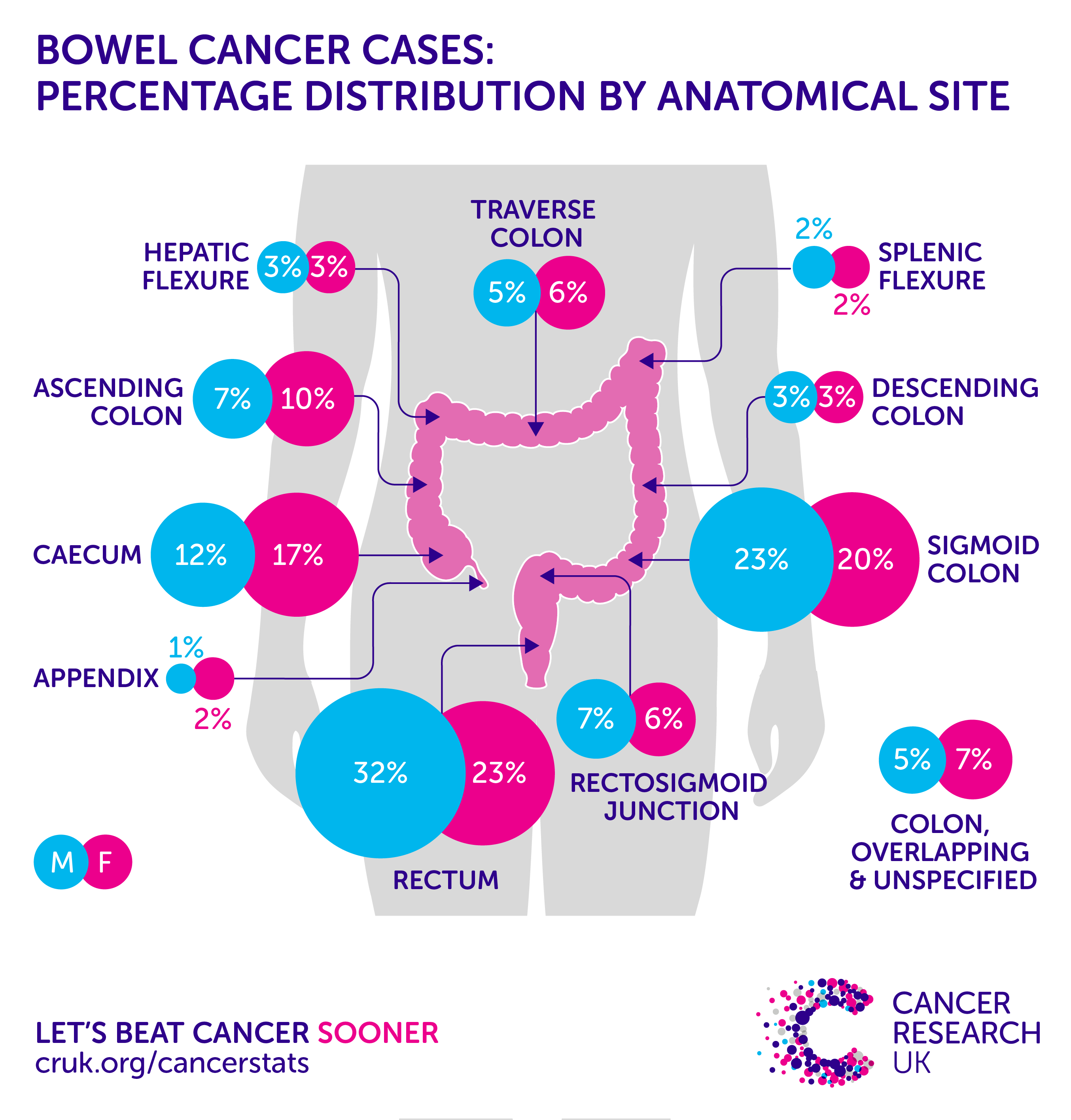 The Latest Bowel Cancer Incidence Statistics For The Uk -4655