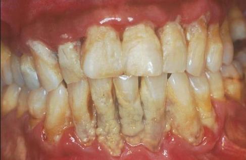 8 Cara Alami Menghilangkan Plak Karang Gigi Dengan Cepat Bisikan