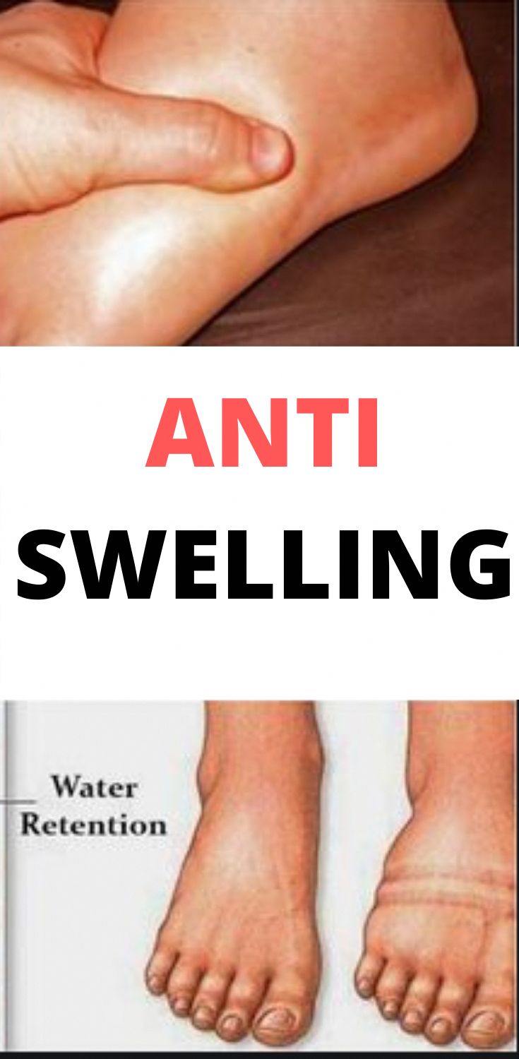 9f6c84982675c3ecdab3e1f89a3fb3eb - How To Get Rid Of Swollen Toes In Winter