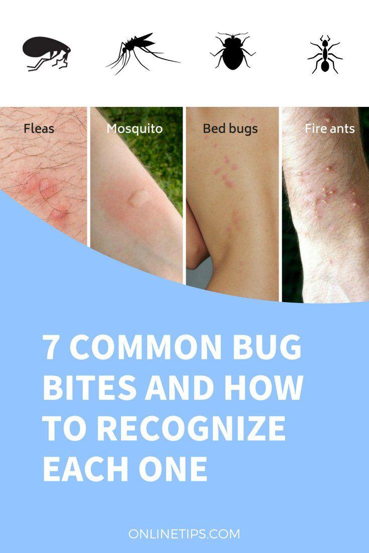 Bug Chart Skin Identification Bites