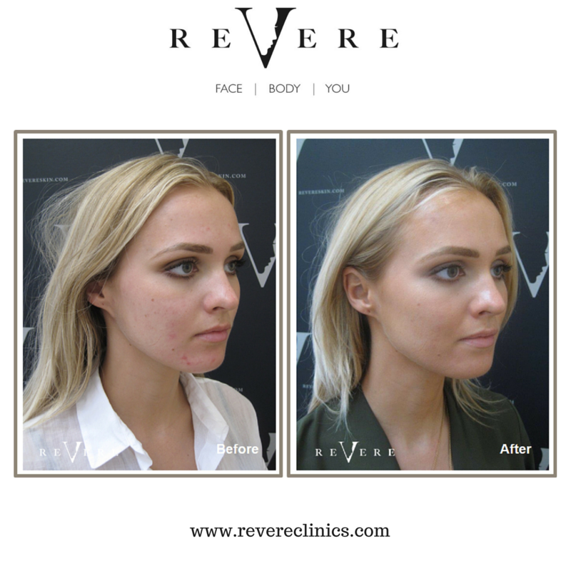 UK (With images) Acne free face, Award winning beauty