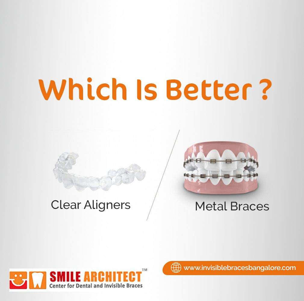 Clear aligners are a customdesigned nearly invisible