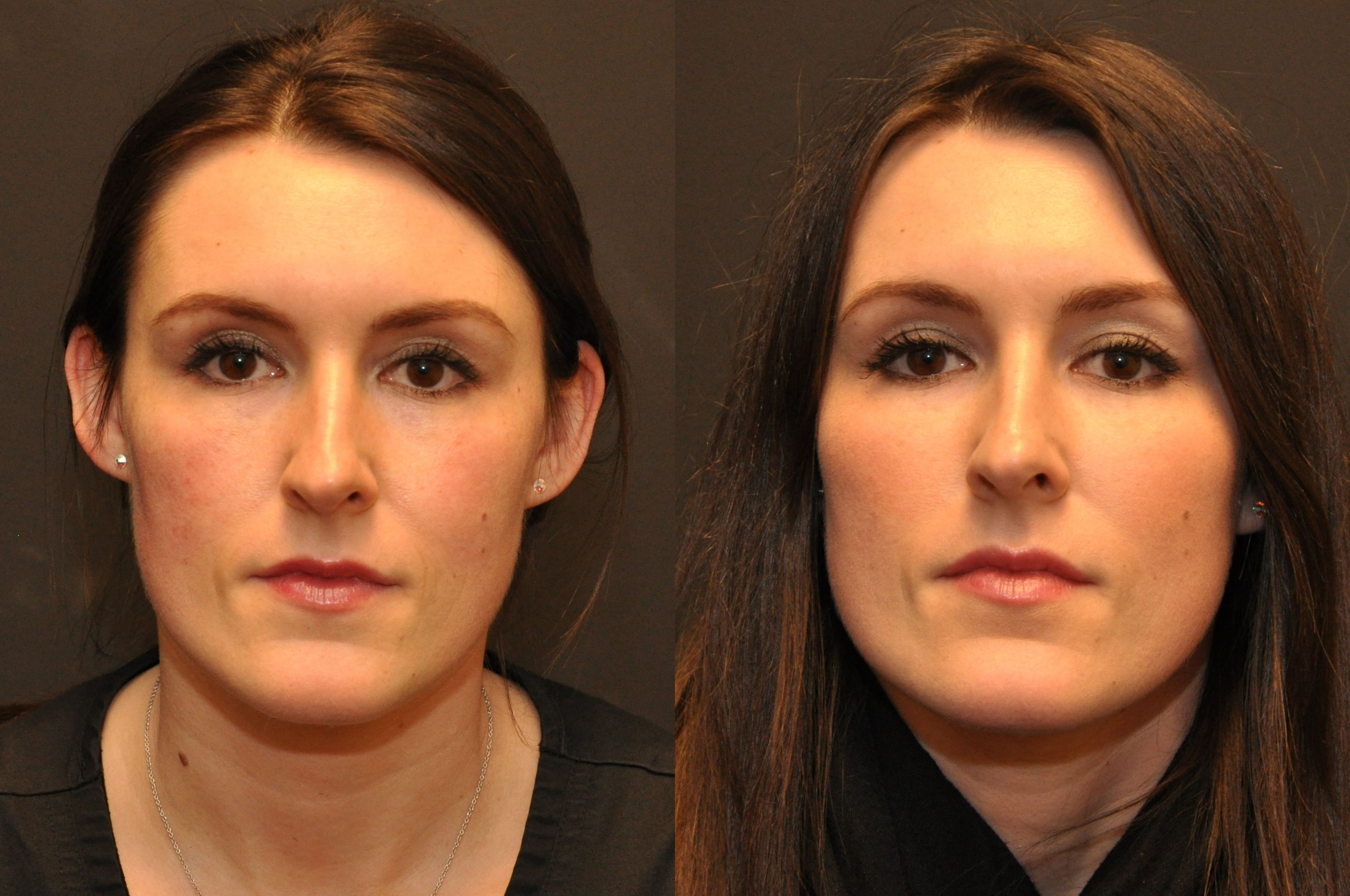 Filler Friday! Before/After Juvederm Voluma to cheeks