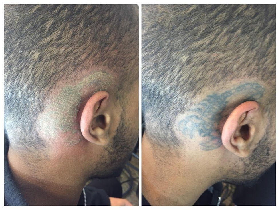 Scorpion tattoo next to an ear after one session of tattoo