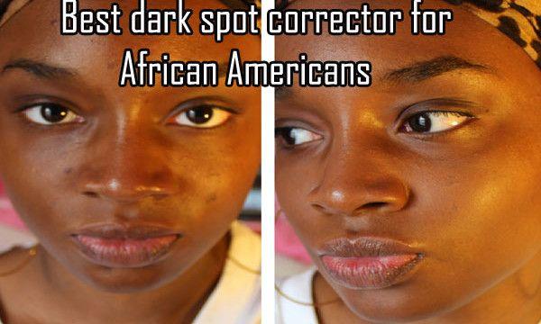 Best Dark Spot Corrector For African Americans Dark Spot Correctors Best Dark Spot Corrector Black Skin Care American Skin