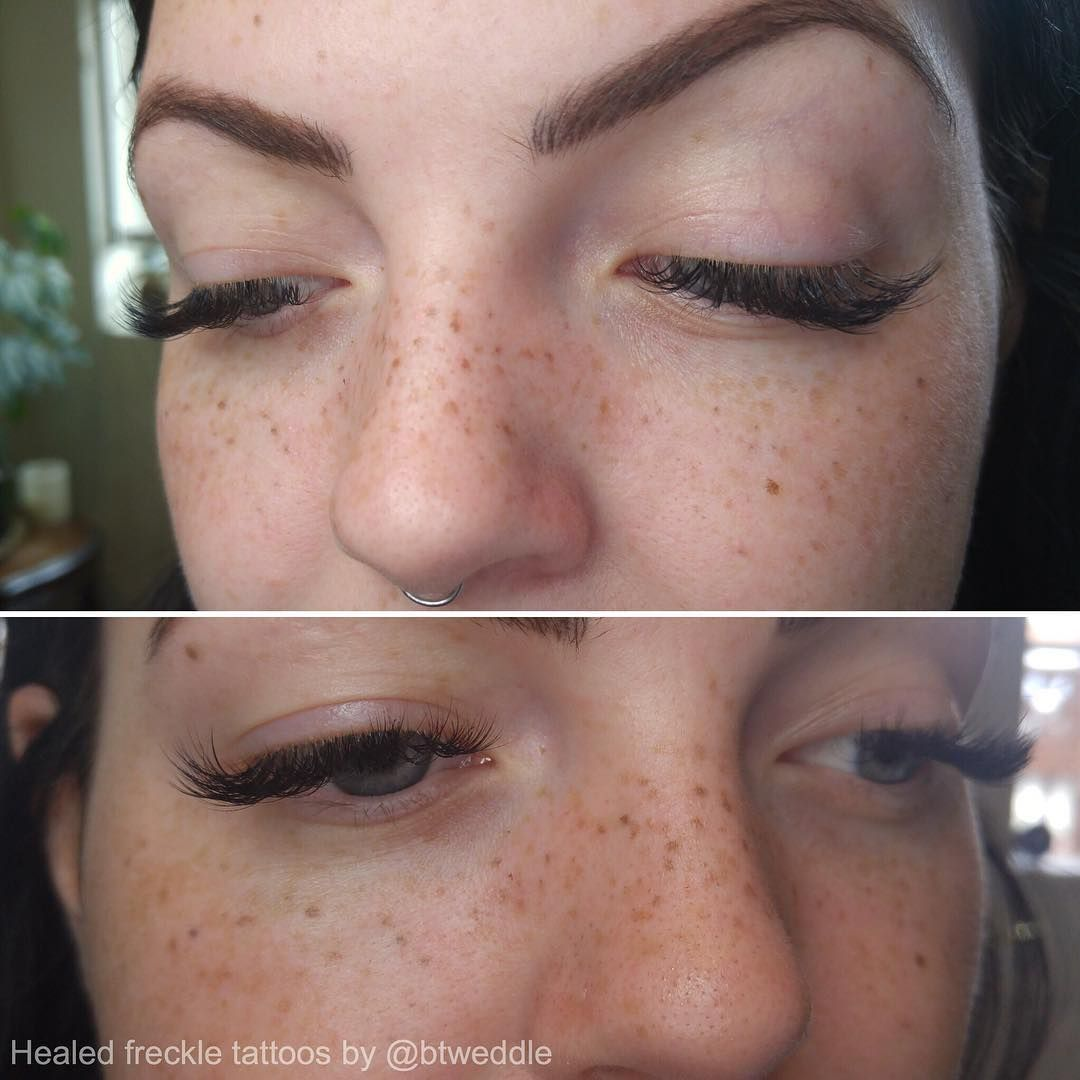 9bdf80a9f Healed tattooed freckles mingling happily with natural ones! We added a  whole bunch more after taking these photos. #cosmetictattoo  #semipermanentmakeup ...
