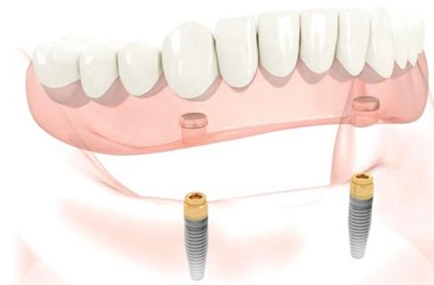 cay-ghep-implantl