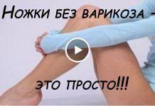 pe picioarele varicoz)