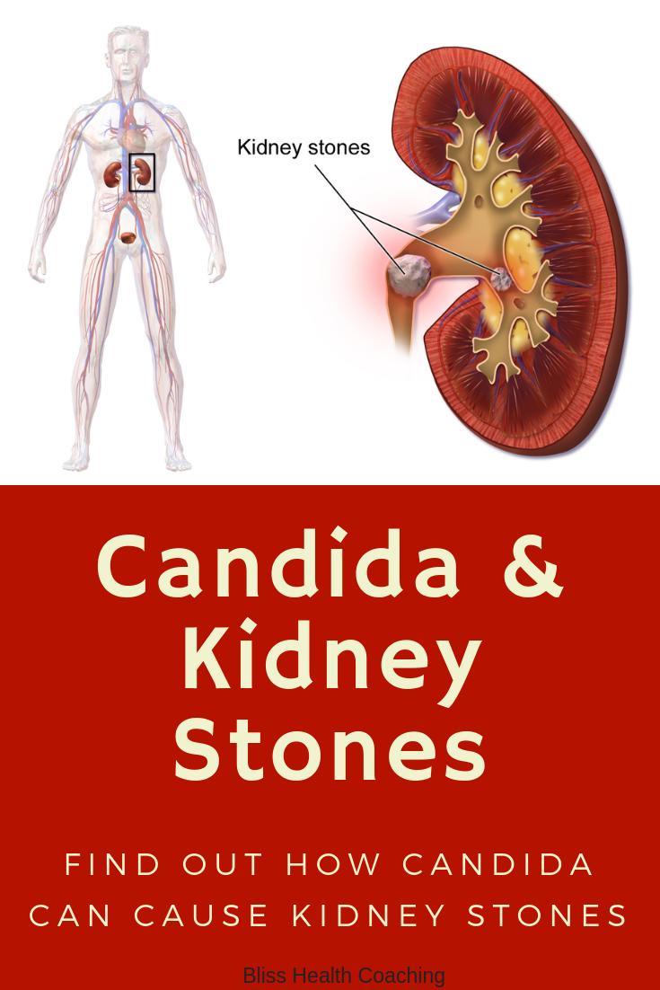 Candida & Kidney Stones
