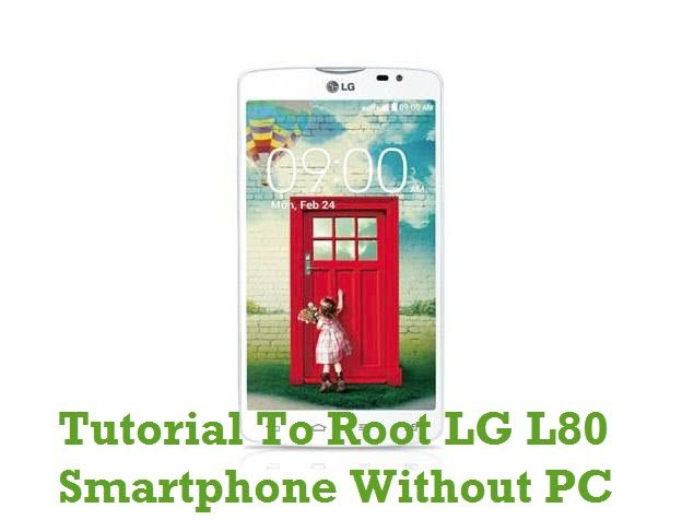 How To Root LG L80 Without PC Or Laptop Computer | Rooting Tutorials