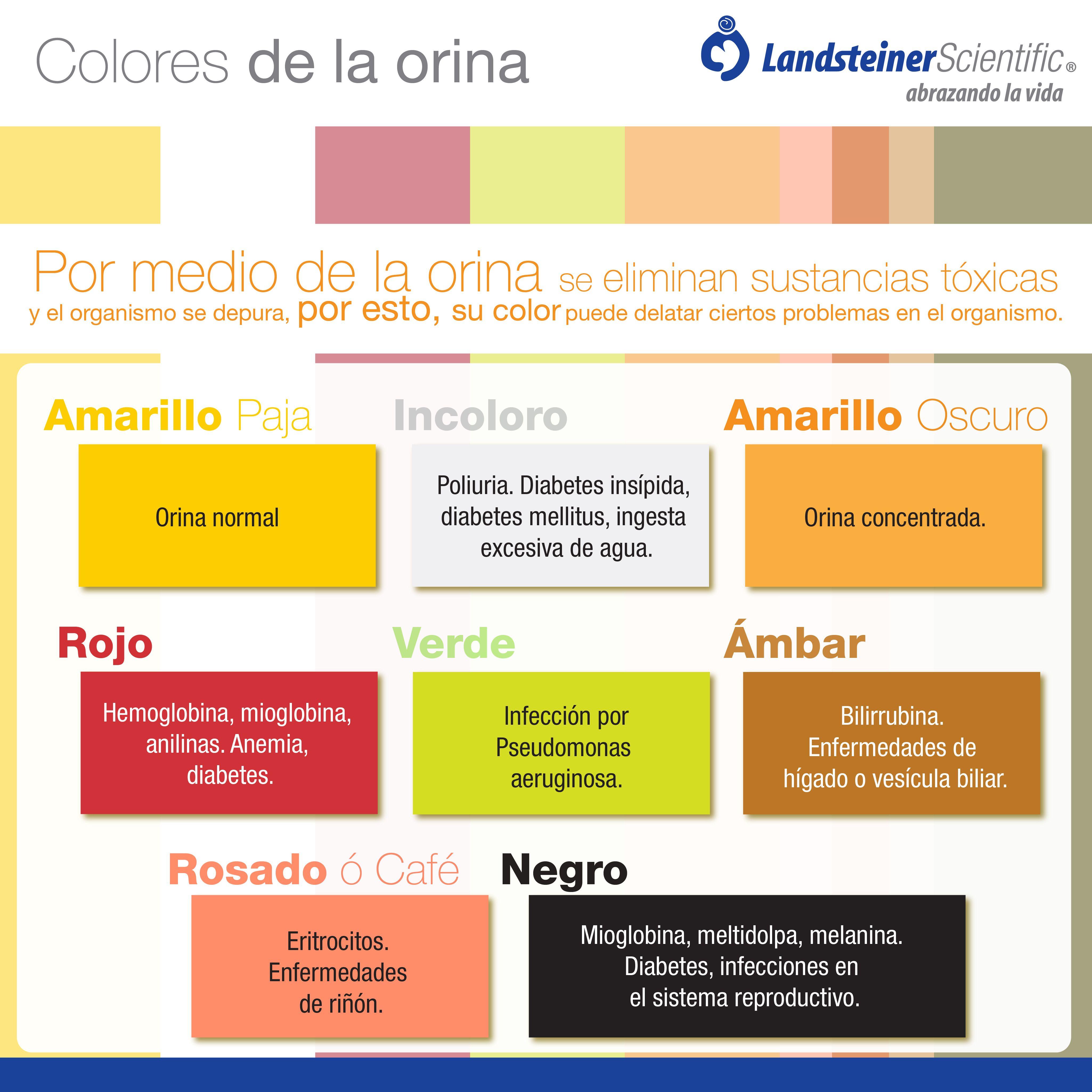 Qu nos indica el color de la orina infograf asdesalud for Inodoro significado