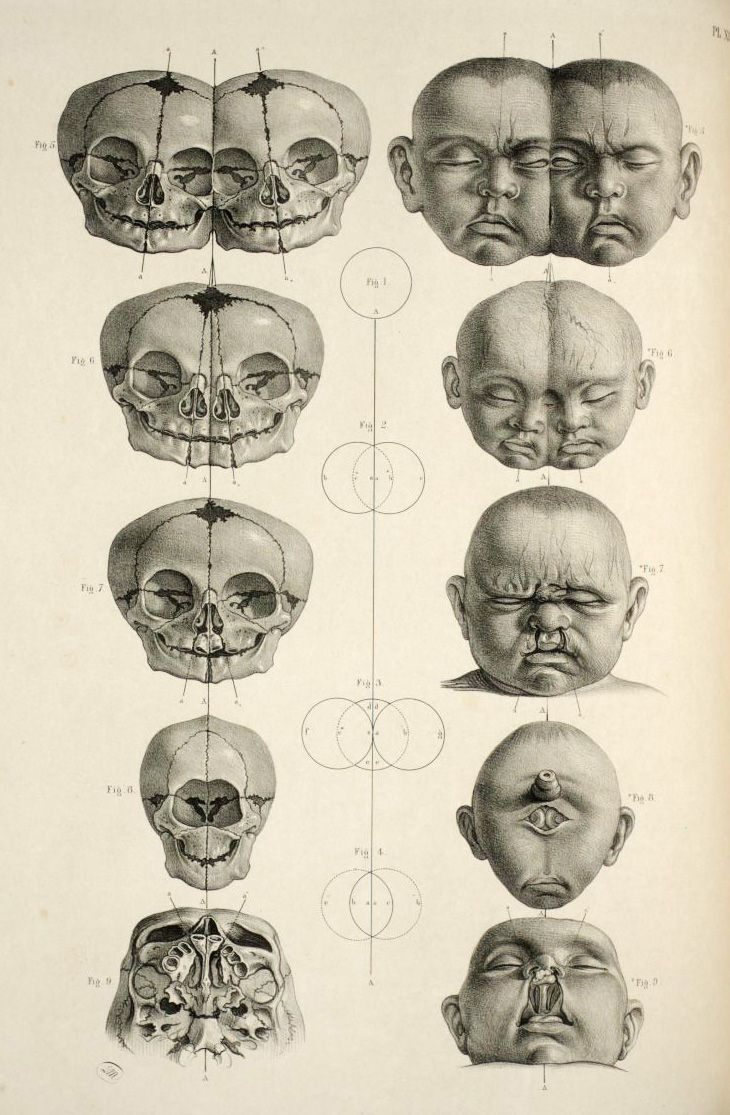 News: Dissecting a Human Head Through Anatomical Illustrations | old ...