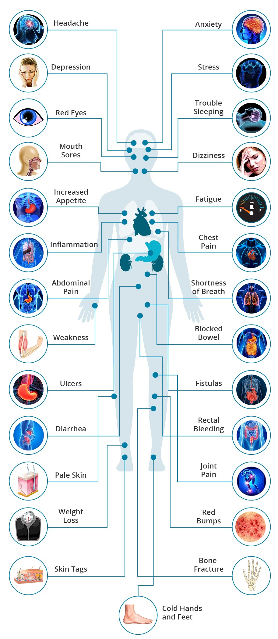 Crohn's Disease: Why Do I Feel This Way? | Crohns, Crohns ...