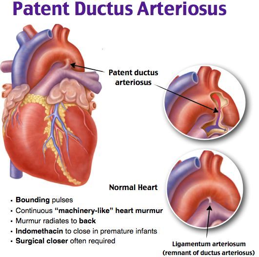 Patent Ductus Arteriosus Rosh Review Rosh Review Pinterest