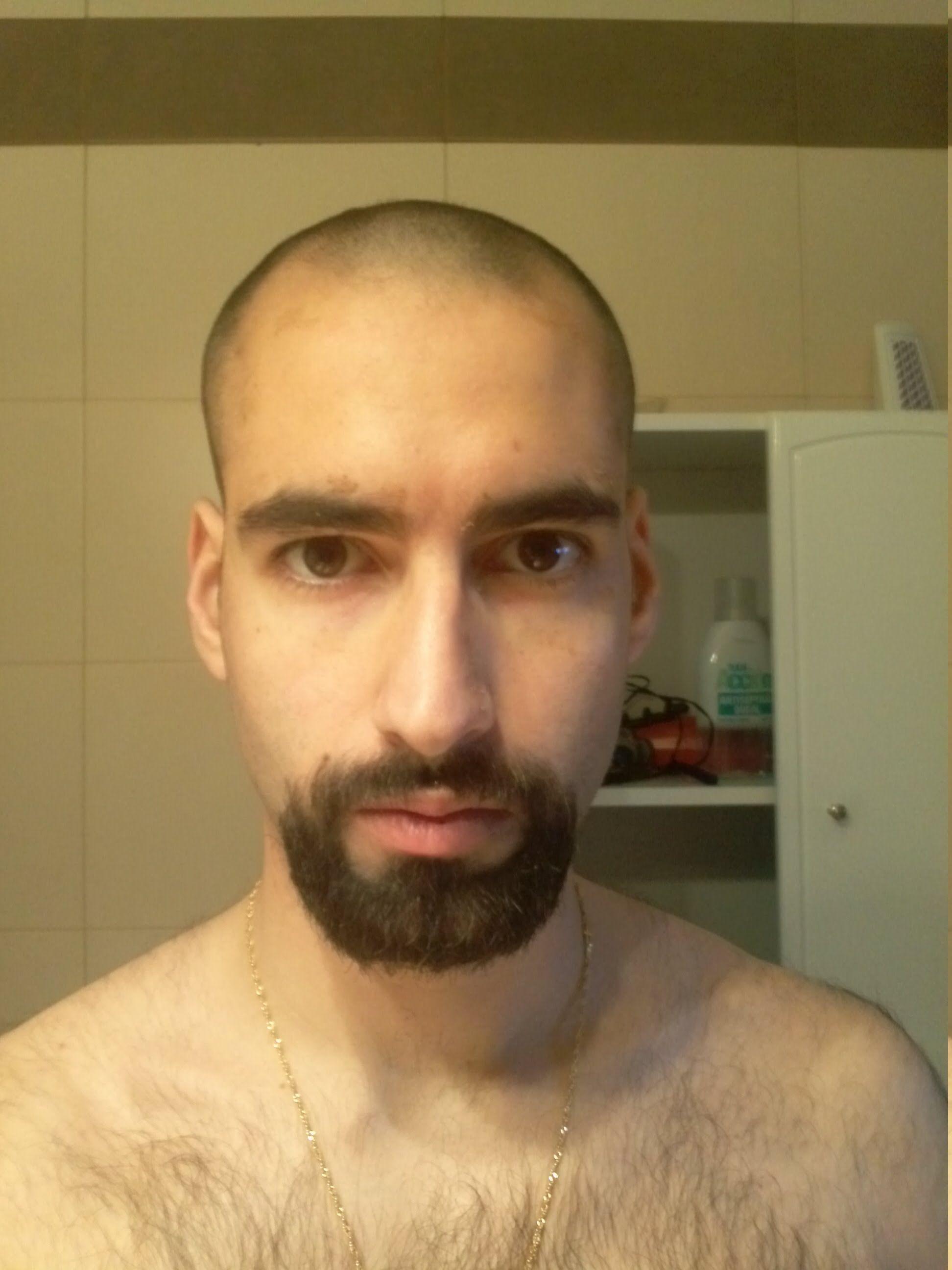 how to grow hair on bald forehead