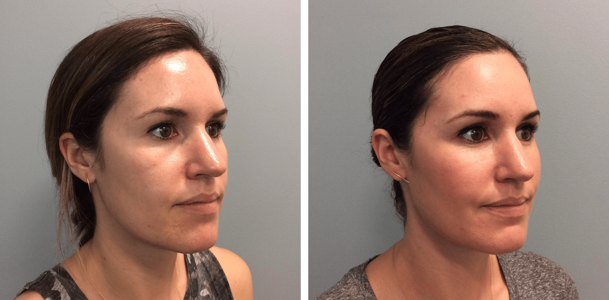 How long does Voluma last in your cheeks? in 2020 Beauty
