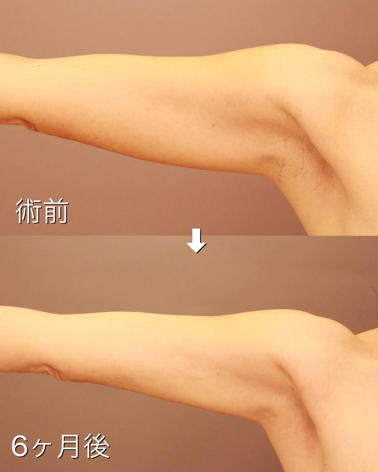 吸引 ブログ 脂肪 二の腕