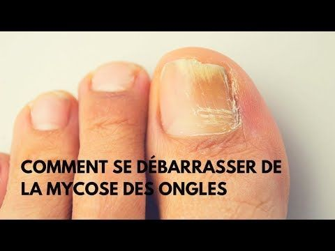 mycose ongle pied photo
