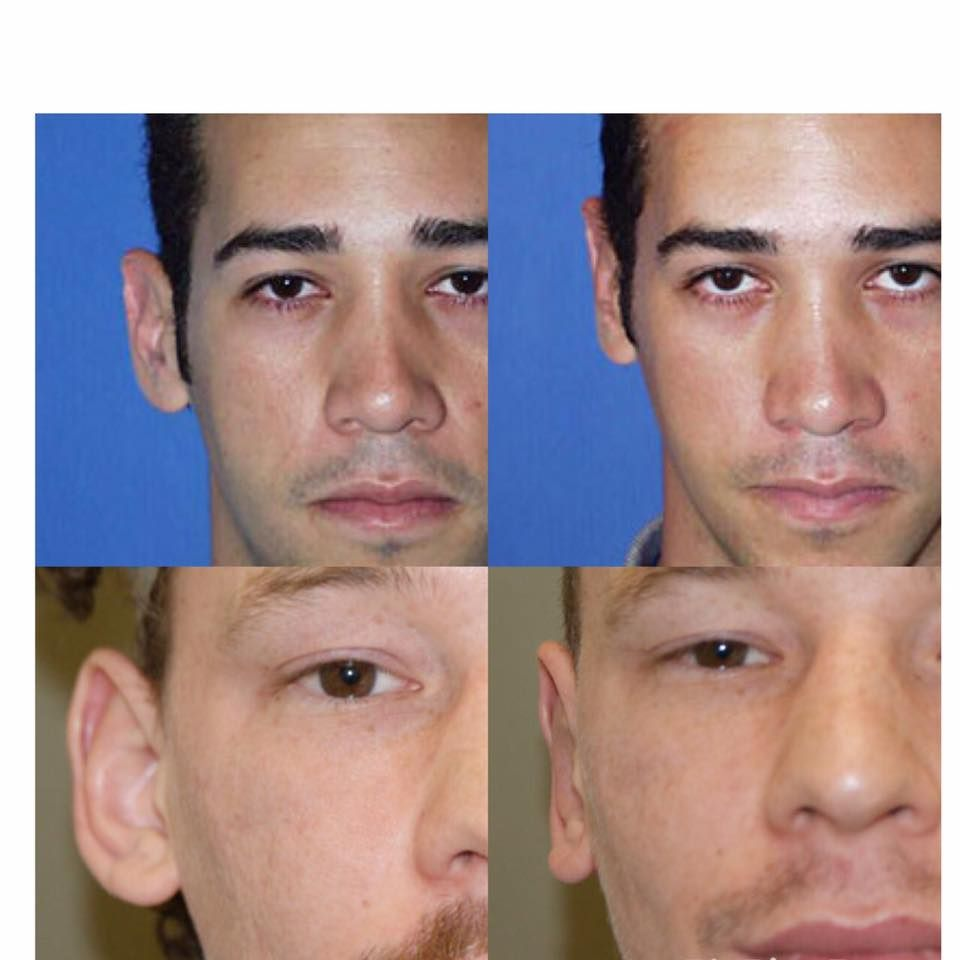 Non surgical otoplasty for adults tell