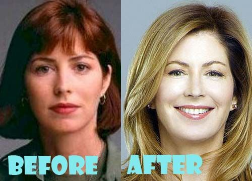 Dana Delany Plastic Surgery Before And After Pictures Plastic Surgery Celebrity Plastic Surgery Botox Face
