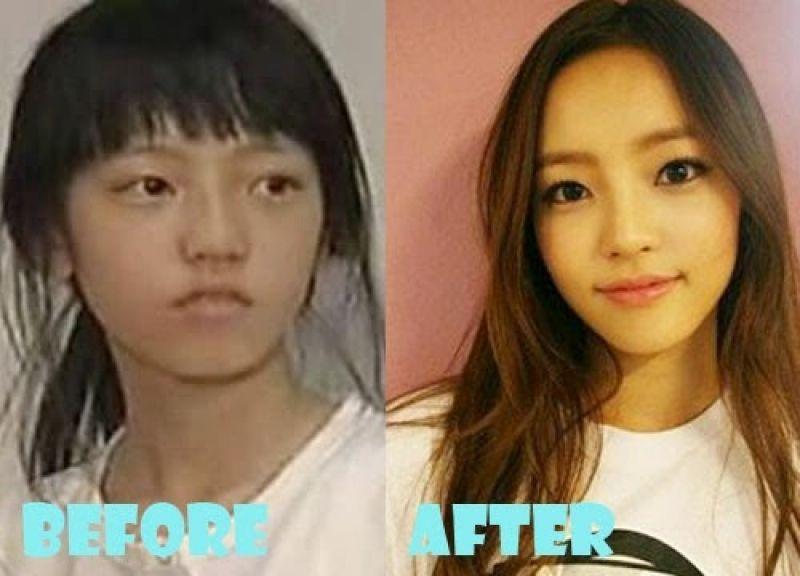 korean actress plastic surgery disaster korean celebrity
