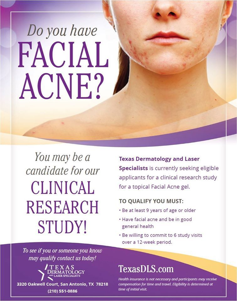 Do You Have Facial Acne You May Be A Candidate For Our Clinical Research Study Check Out Our Website At Http Www Texasdls Com Clinical Acne Facial