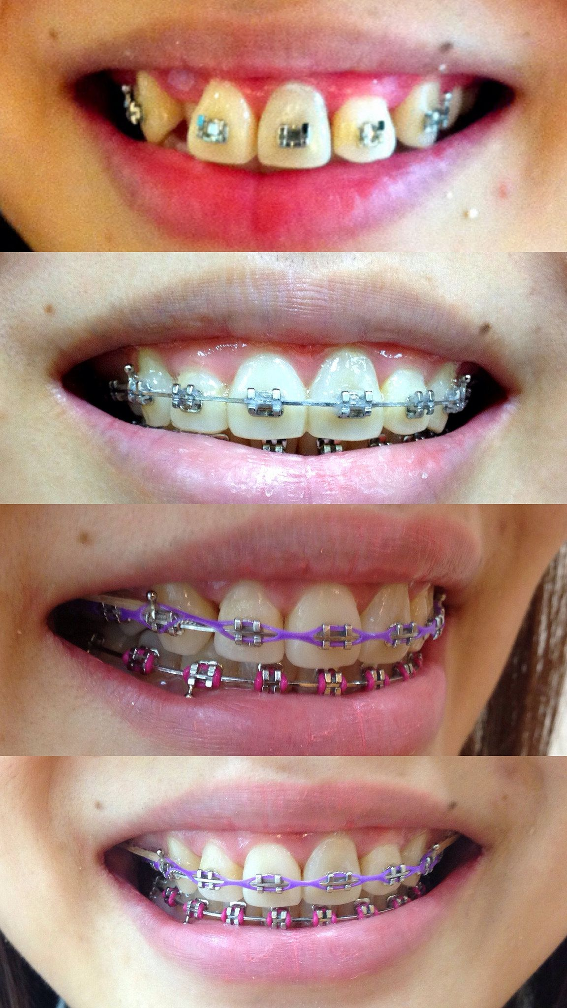 Pin by Evil H on Beautiful Braces Orthodontics braces