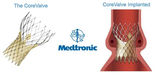 Pin On Medtronic Core Technologies
