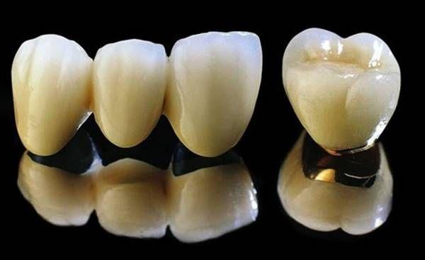 ĐỘ BỀN của răng sứ thẩm mỹ TỐI ĐA được bao nhiêu năm? 1