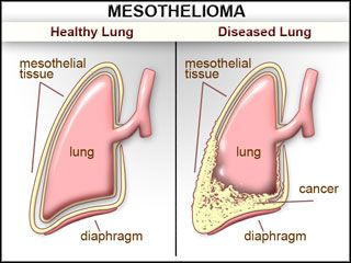 Asbestosis Disease Cancer Lung Picture Mesothelioma Cancer Asbestos Related Disease Have You Unwittingly