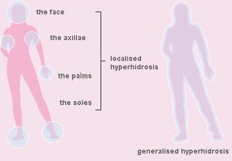 Here is how a localized hyperhidrosis occurs . call us for more information at +60124520077 , Email us at wmcphysiotherapy@gmail.com or visit us at www.newhopemedic.com
