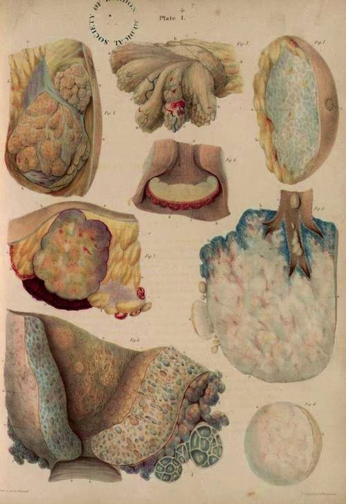 "Robert Carswell, ""Neoplasms of the breast, pancreas, lung, uterus ..."