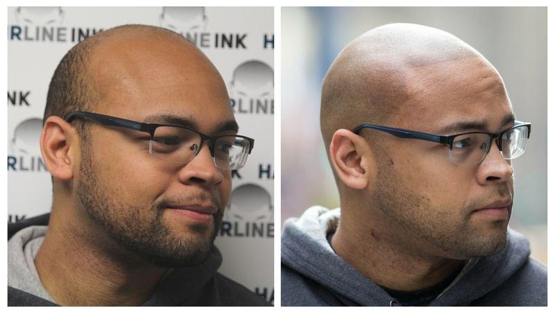 Hair Loss Male Pattern Baldness Hairline Restoration Hair Loss