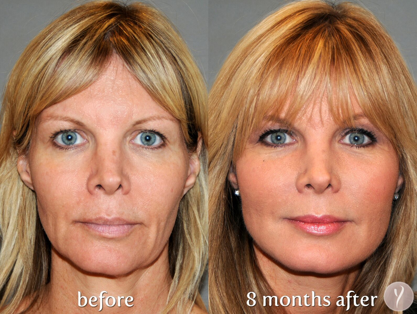 Can consult phoenix facial line removal phrase