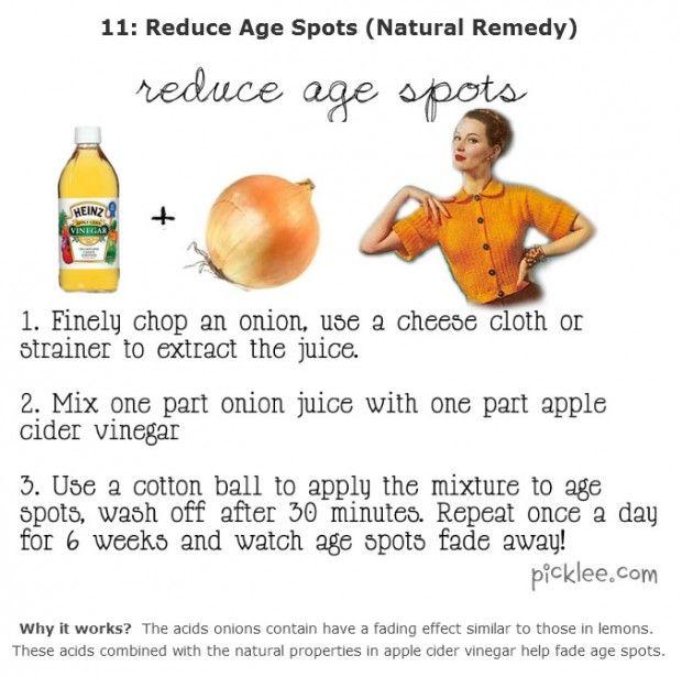 beauty remedy tips