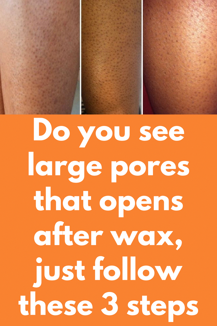 Do You See Large Pores That Opens After Wax Just Follow These 3 Steps It Is Very Common To See Visible Large Skin Pores After Waxi Large Pores Nose Pores Pore
