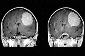 Stem Cells Show Promise For Treating >> Stem Cells From Fat Show Promise In Treatment Of Brain Cancer Stem