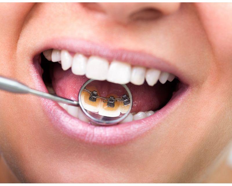 Walk In Dentist Near Me Denture repairs