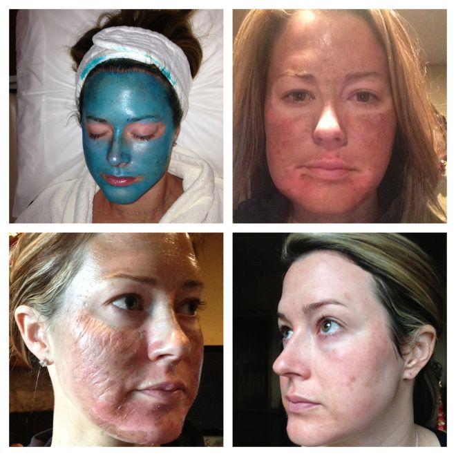 My Obagi Blue Peel Experience Obagi Skin Care Facial Peel Peeling Skin