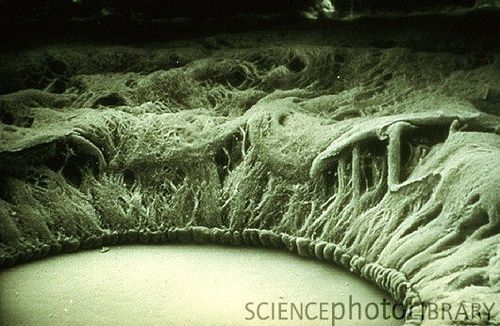 Iris and pupil as seen with an electron microscope