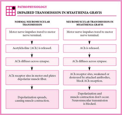 Patofisiologi Mg With Images Myasthenia Gravis