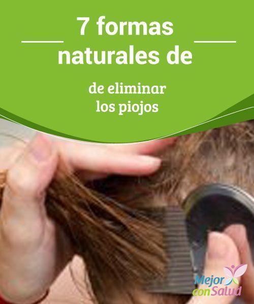 piojos producen caida del cabello